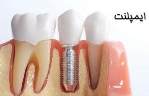 هزینه ایمپلنت دندان - بهترین ایمپلنت