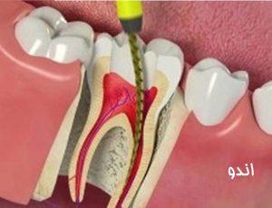هزینه عصب کشی دندان- هزینه درمان ریشه دندان