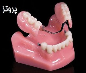 هزینه پروتز دندان - هزینه یک دست کامل دندان