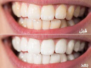 هزینه جرم گیری - هزینه جرمگیری دندان