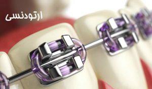 هزینه ارتودنسی در بهترین دندانپزشک تهران