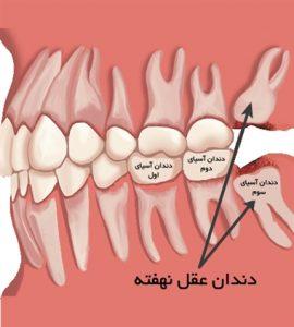 دندان عقل چیست آیا دندان عقل را باید کشید یا نه هزینه کشیدن دندان عقل