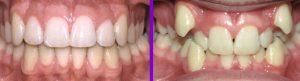 اصلاح دندان
