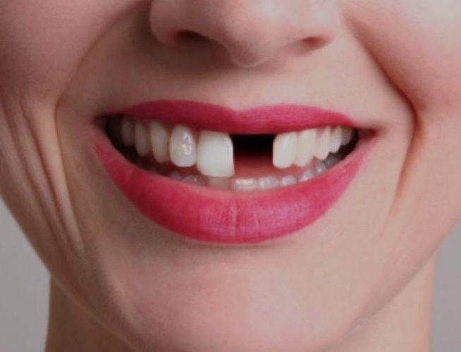 افتادن دندان