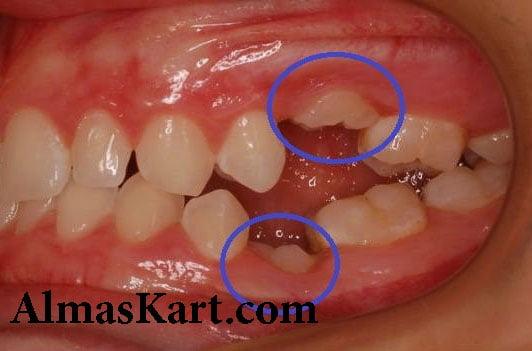 ناهنجاری دندان