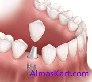 کاشت دندان بدون جراحی