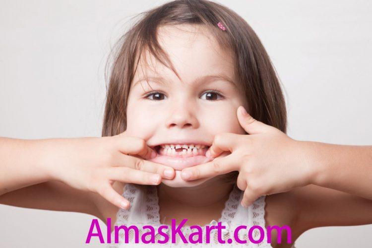 شکستن دندان در کودکان