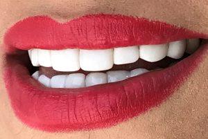 کامپوزیت دندان - الماس کارت