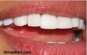 هزینه کامپوزیت دندان
