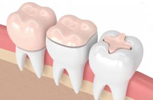 درد دندان روکش