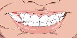 بند آوردن خونریزی لثه بعد از کشیدن دندان
