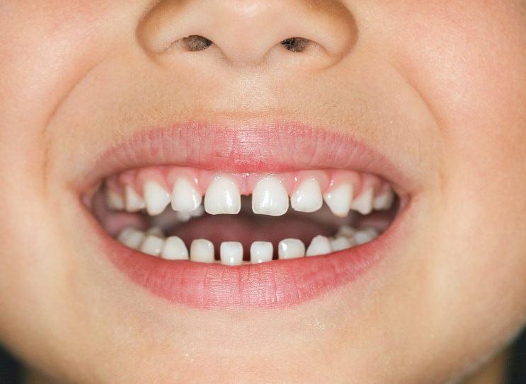 فاصله بین دندان ها - دیاستم - دیاستما