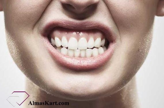 دندان قروچه - الماس کارت